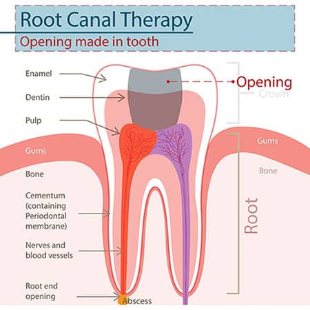 Pain Free Root Canal Dentist in Gresham - Main Street Dental